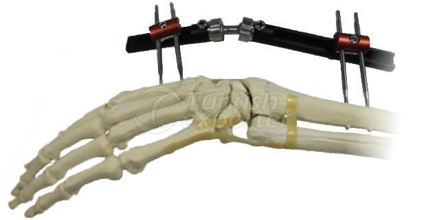 Monolateral Wrist Fixator