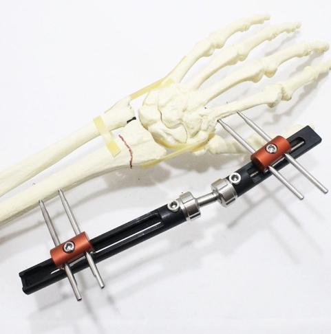 Fxador de pulso de mão