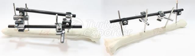 Large Tubular Fixator System